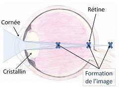oeil astigmate